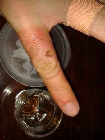 staph_mrsa_cure-rotated-resized-IMG_20141004_040159